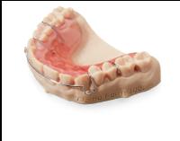 Zahnprotesen